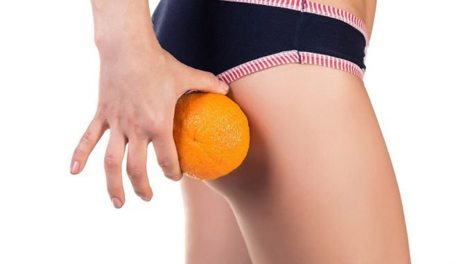 Целлюлит. Причины, признаки и методы избавления от «апельсиновой корочки»