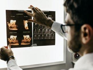 Компьютернаятомография.3D-снимок зубов