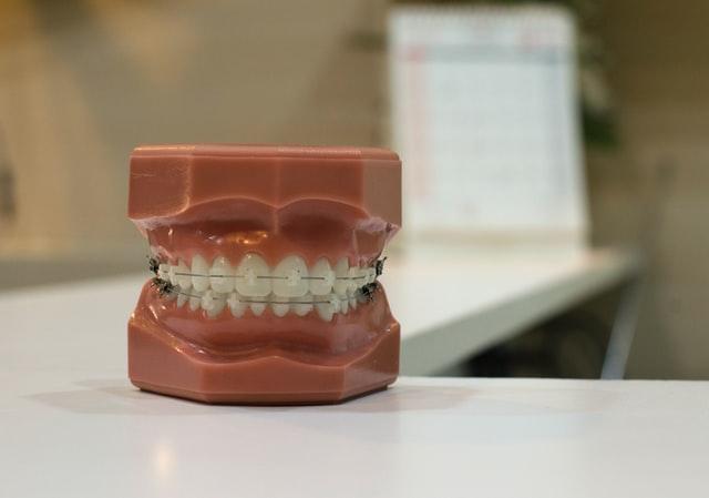 Диагностика заболевания зубов